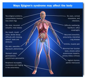 sjogrens_body